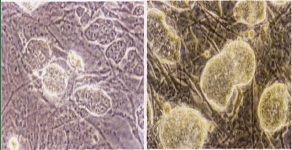 Şekil 1. Embriyonal kök hücrelerinin Faz-kontrast mikroskobu altındaki görünümleri