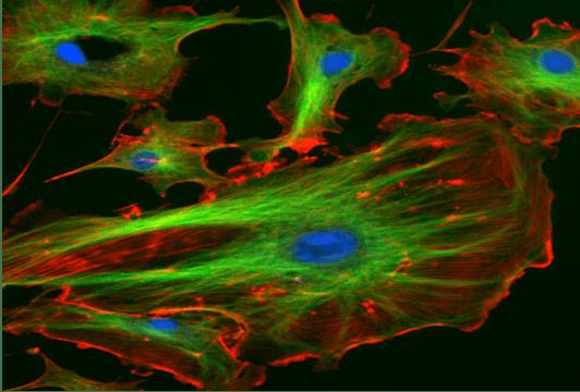 Şekil 2. Endothel hücrelerinin floresan mikroskobu altındaki görüntüsü